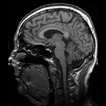 Normal Sagittal Brain MRI