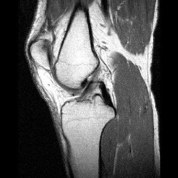 MRI Images - Sagittal Knee MRI Images T1 Weighted - MR-TIP com