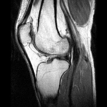 MRI Images - Sagittal Knee MRI Images T1 Weighted - MR-TIP.com